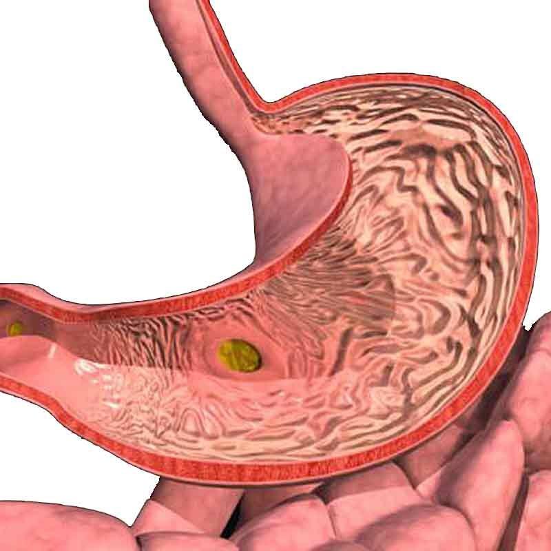 Хронический гастрит желудка - виды и формы, болезнь у детей и беременных, фото и картинки