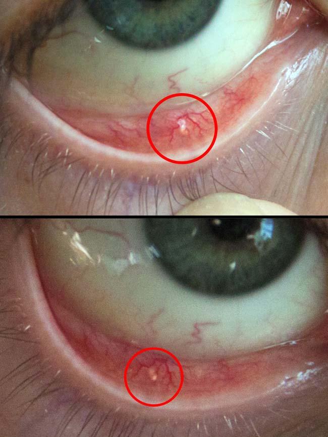 паразиты живущие глазах человека