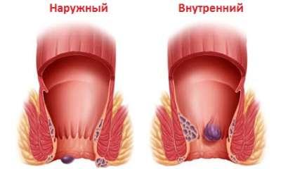 Наружный геморрой лечение, фото, удаление, причины